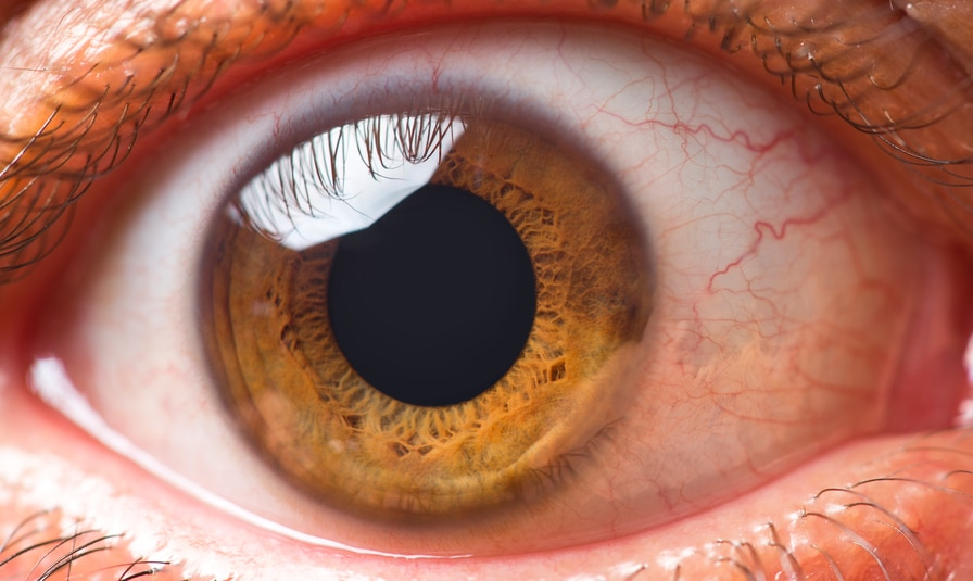 What You Need to Know About Eye Floaters