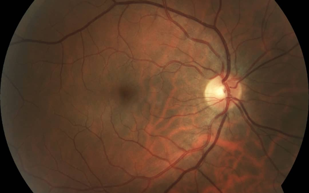 What we can see with retinal and optical coherence tomography imaging
